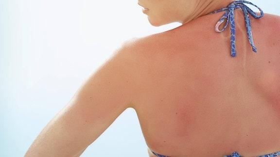 Frau mit verbranntem Rücken