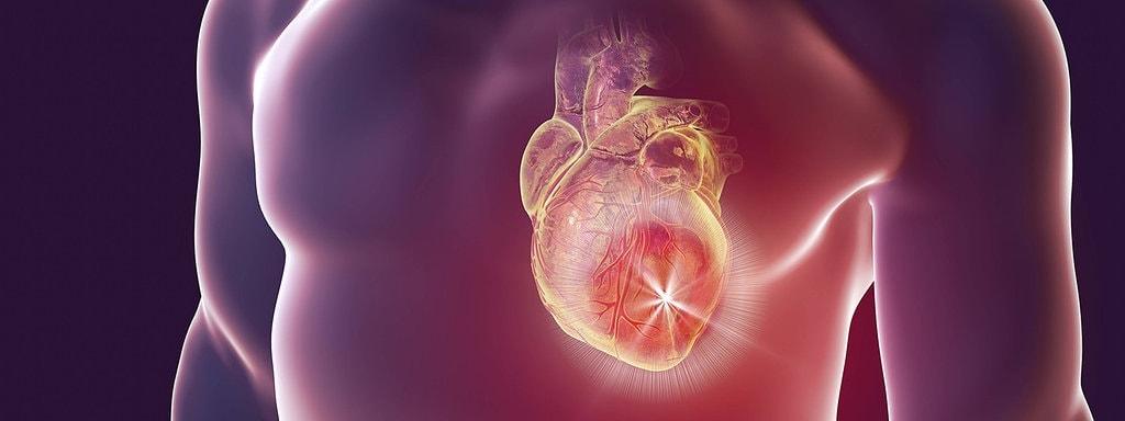 Stent Schutzt Nicht Vor Herzinfarkt Mdr De