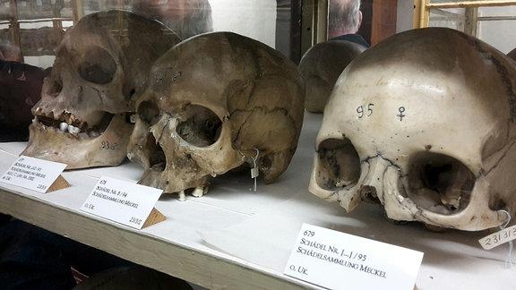 Drei Schädel liegen in einer Vitrine