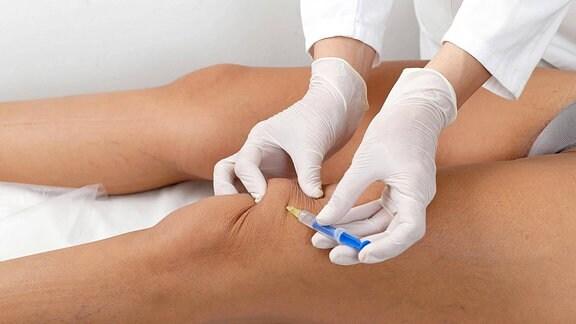 Illustration - Einer Frau wird Botox ins Bein gespritzt.